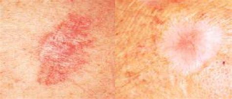 Dermatología 007: CARCINOMA BASOCELULAR GRUPO 005