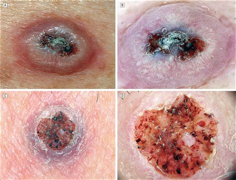 Dermoscopy of Squamous Cell Carcinoma and Keratoacanthoma ...
