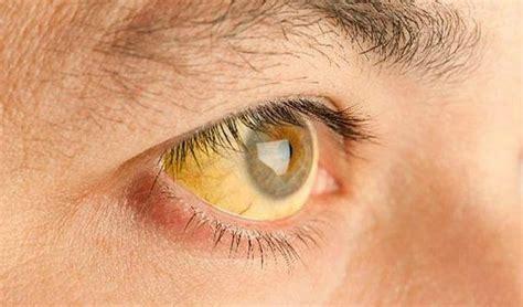 Descubre las enfermedades venéreas más comunes