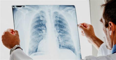 Descubren un tratamiento que reduce el cáncer de pulmón en ...