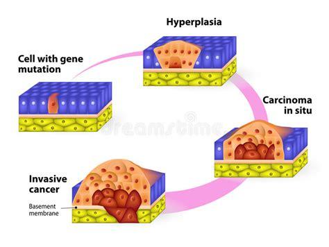 Developmental Phases Of Cancer Stock Vector   Illustration ...