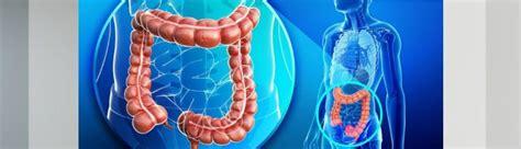 Día mundial contra el cáncer de colon: Una vida sana puede ...
