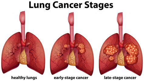 Diagram showing lung cancer stages | Premium Vector
