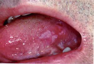 Diário de uma Dentista!: Câncer de Boca