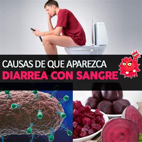 Diarrea con sangre: causas y tratamiento | La Guía de las ...
