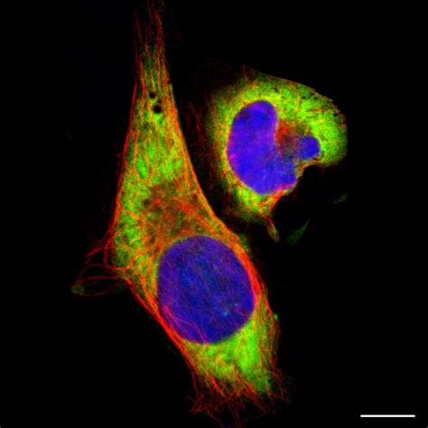 Dictionary   Cell: Cytoplasm   The Human Protein Atlas