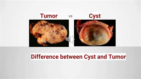 Difference between Cyst and Tumor   YouTube