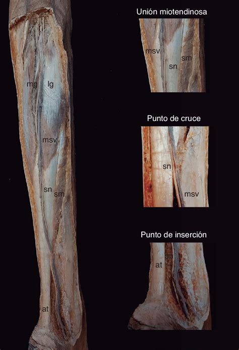 Disección de la región posterior de la pierna. Se han ...