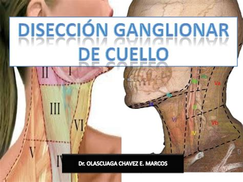 Disección ganglionar de cuello