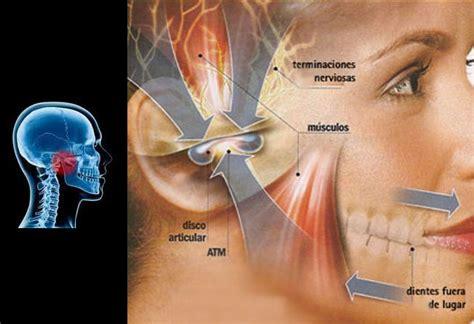 Disfunciones en la ATM  articulación temporomandibular ...