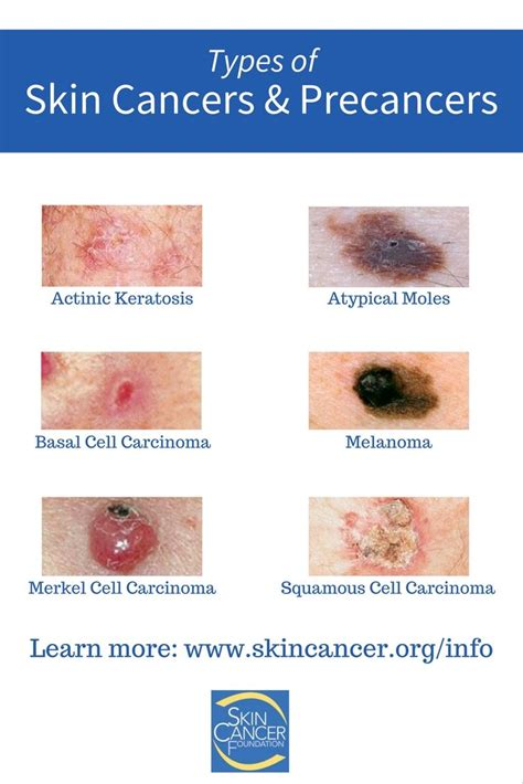 Do you know all of the different types of skin cancers and ...