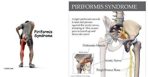 Dolor en el glúteo, ¿Será el síndrome piramidal? ~ CorpoMech