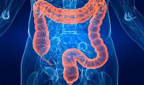 Dos tipos de bacterias intervienen en el cáncer de colon ...