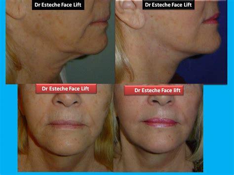 Dr.Esteche | Cirugía Plástica Facial | Cirugía Facial ...
