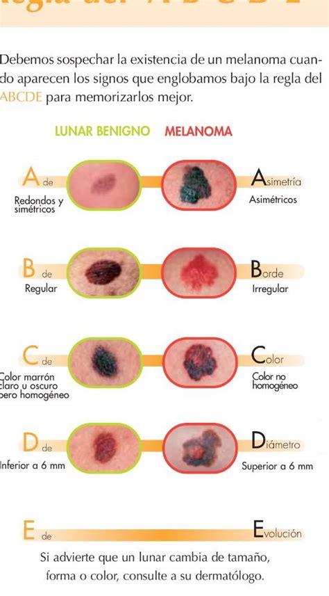 Dra. Natalia Jiménez on Twitter:  2 #melanomas extirpados ...