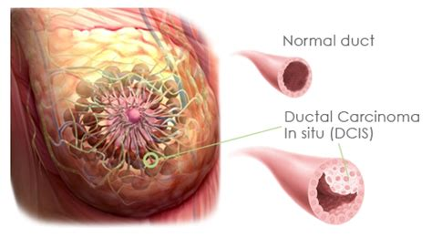 Ductal Carcinoma In Situ  DCIS  Causes, Symptoms ...