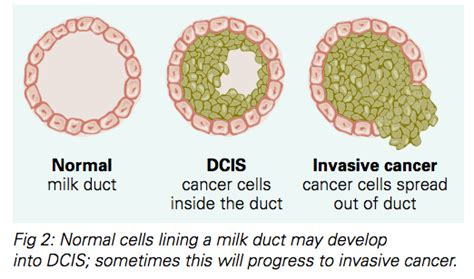 Ductal Carcinoma In Situ  DCIS  Fact Sheet | Westmead BCI