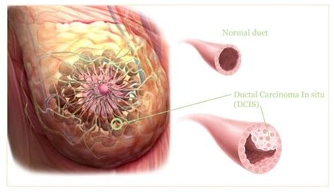 Ductal carcinoma in situ  DCIS  is a noninvasive breast ...