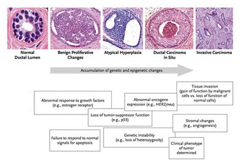 Ductal Carcinoma in Situ of the Breast | NEJM