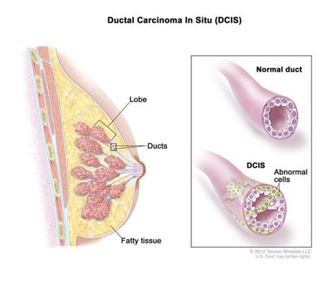 Ductal Carcinoma In Situ ⁄ Cancer Compass~An Alternate Route