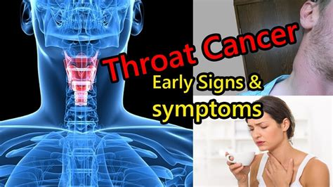 Early Signs of Throat Cancer That is Growing in Your Body ...