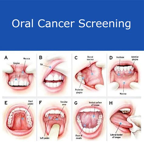 Early Symptoms and Possible Prevention of Oral Cancer ...
