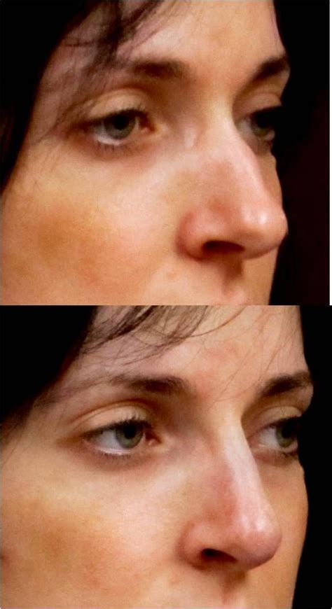Eastern European nose often has a  wave  and a bulbous tip ...