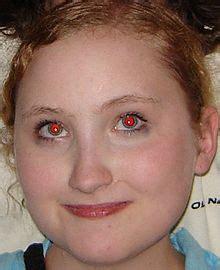 Efecto de ojos rojos   Wikipedia, la enciclopedia libre