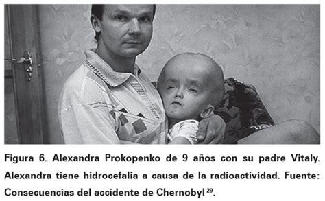 Efectos de Chernobyl Consecuencias a largo plazo de la