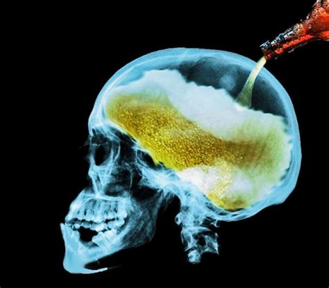 Effects of alcohol on the brain: Everything you need to ...