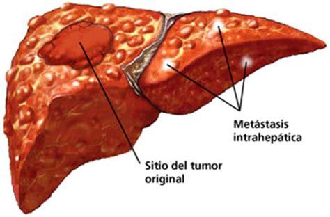 Ejemplos de cáncer: Cáncer hepático