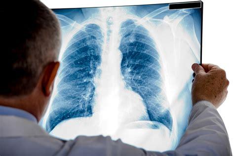 El 80% de casos de cáncer de pulmón se diagnostica en fase ...