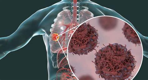 El 80% de los cánceres de pulmón se diagnostican en fase ...