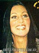 El Antes y Despues de Cher   Biografia, Fotos y Familia