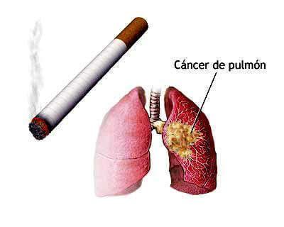 EL cáncer aumenta, las personas disminuyen.