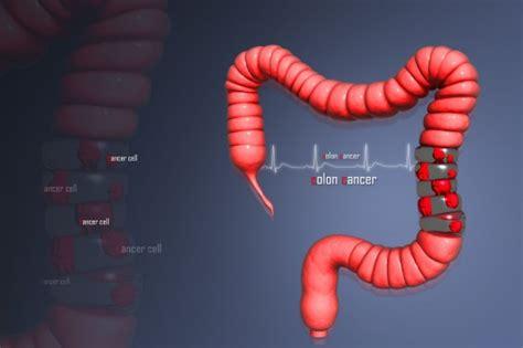 El cáncer de colon puede ser curable si se detecta a ...