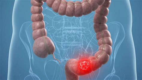 El cáncer de colon se puede curar en el 90% de los casos ...