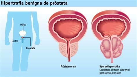 El cáncer de próstata es la segunda causa de muerte en ...
