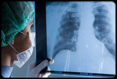 El cáncer de pulmón cambia de cara   Salud   EL MUNDO