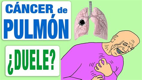 El cáncer de pulmón ¿duele?   YouTube