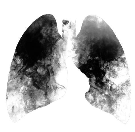 El cáncer de pulmón es mucho más mortal en las mujeres ...