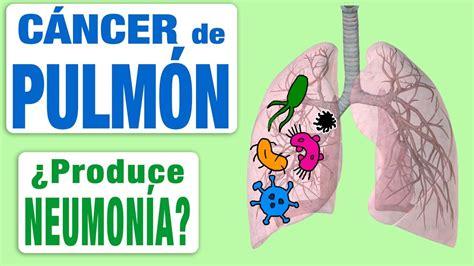 El cáncer de pulmón ¿puede producir neumonía?   YouTube