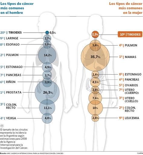 El cáncer de tiroides es el décimo que más afecta a las ...