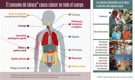 El cáncer y el consumo de tabaco
