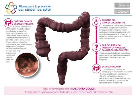 El cribado de cáncer de colon salva vidas   El médico ...