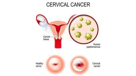 El cribado poblacional de cáncer de cérvix entra en vigor ...