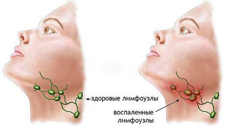 El ganglio linfático debajo de la mandíbula está inflamado ...