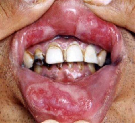 El médico y la mujer: Gonorrea