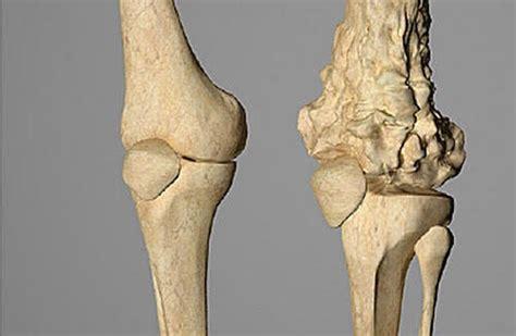 El osteosarcoma un cáncer que afecta a niños y adultos