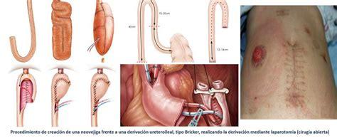 El Rey Juan Carlos realiza cistectomías por robot